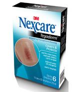 Nexcare 3M Tegaderm Transparent Dressing 401